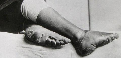 Abgebundene Füße