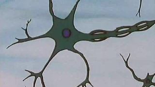 10. Die gibt's nur einmal - Die Nervenzellen