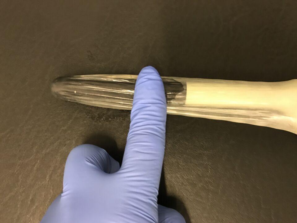 ausstreichen des Ultraschallgels mit dem Finger