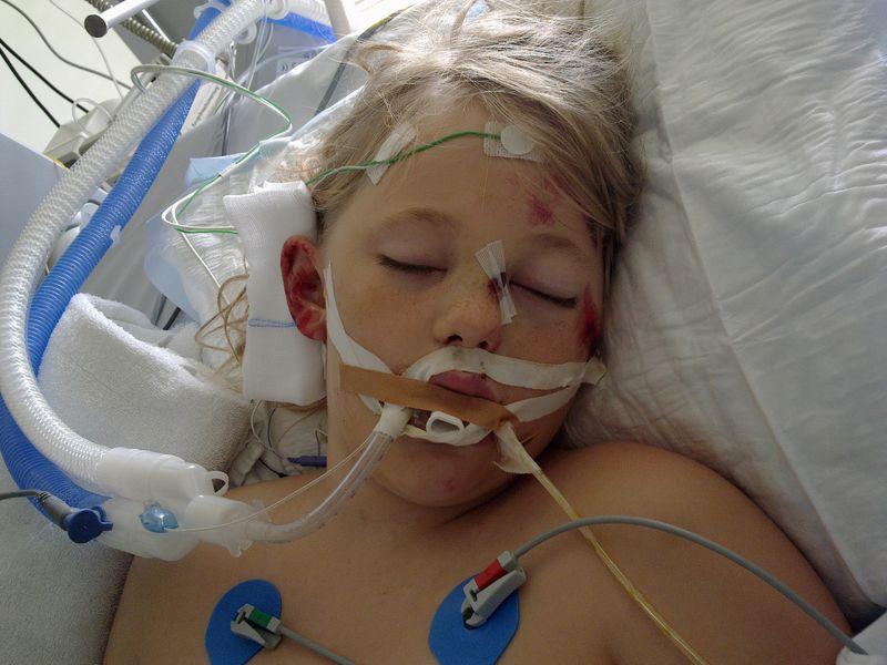 patient nach künstlichem koma